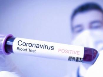 Без вируса корона 15 земаља