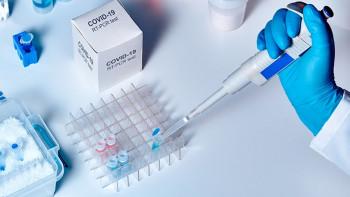 Institutu za Javno zdravstvo Srpske 45.000 PCR testova