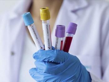U Srpskoj virus korona potvrđen kod 121 osobe, sedam iz Trebinja