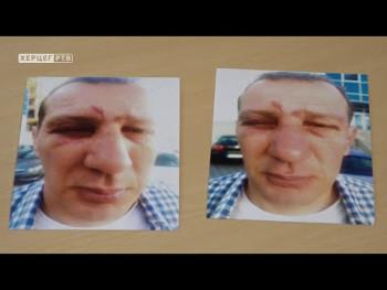 Trebinjac optužuje policiju za nasilje(Video)