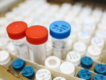 U Srpskoj jedan novi slučaj virusa korona, nema preminulih